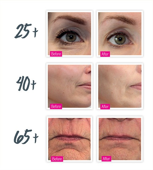 A New Method for Skin Rejuvenation is Microneedling in Clearwater FL