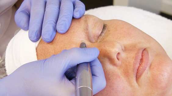 Microneedling treatment at Bella Michelle Day Spa in Clearwater FL