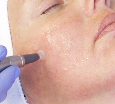 Microneedling at Bella Michelle Day Spa in Clearwater FL